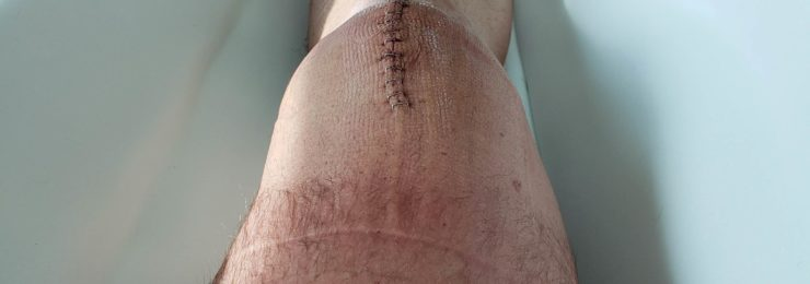 Cold laser therapy was used to treat this knee injury.