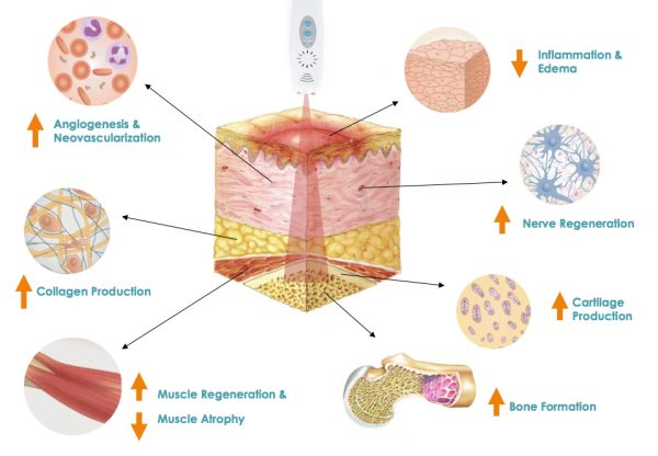 picture explaining the effect of cold laser on tissue
