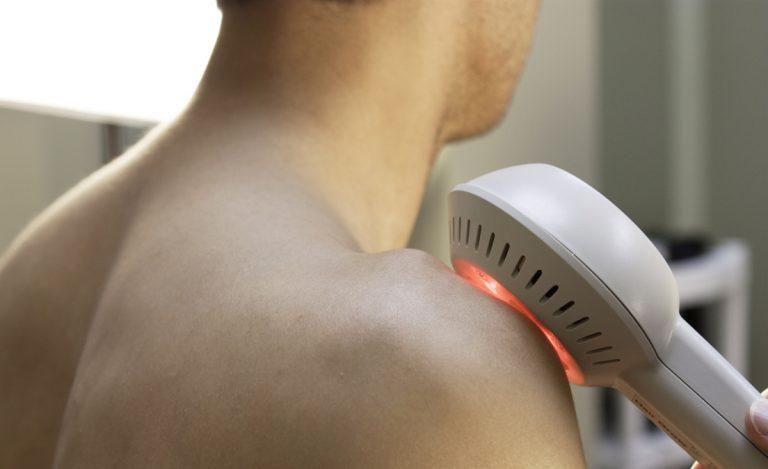 cold laser treating shoulder pain