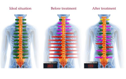 scan Airdrie chiropractors use to measure your health