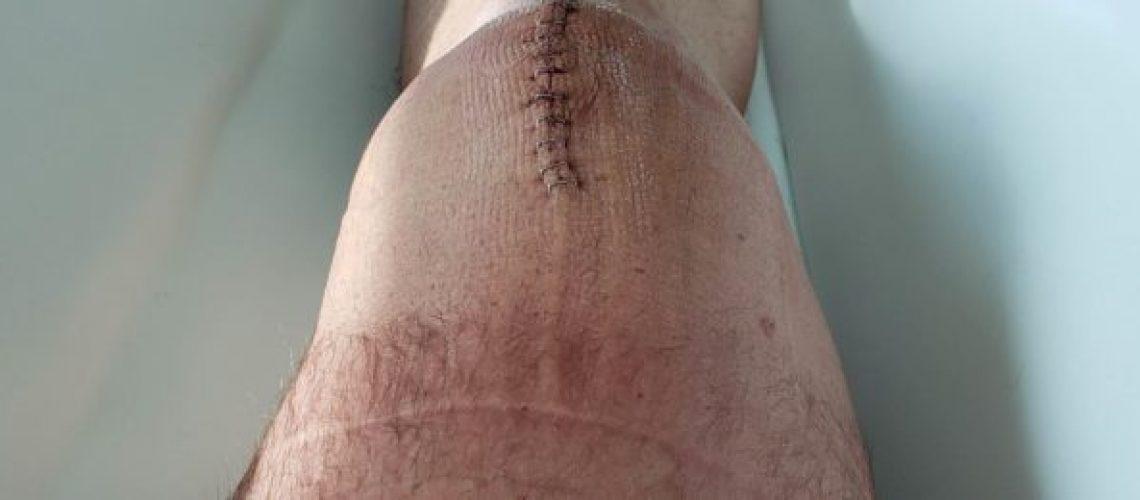 patellar knee surgery with staples